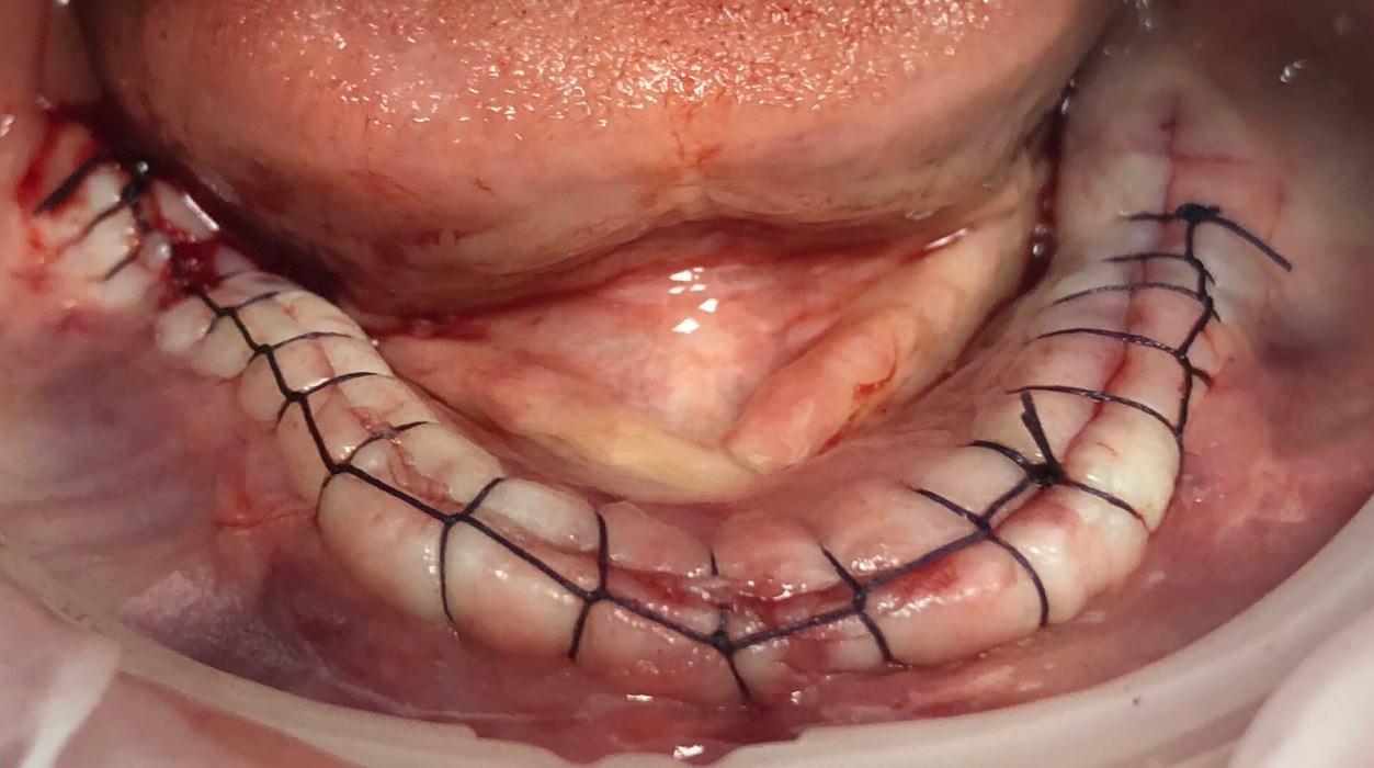 Импланты AstraTech с синус-лифтингом