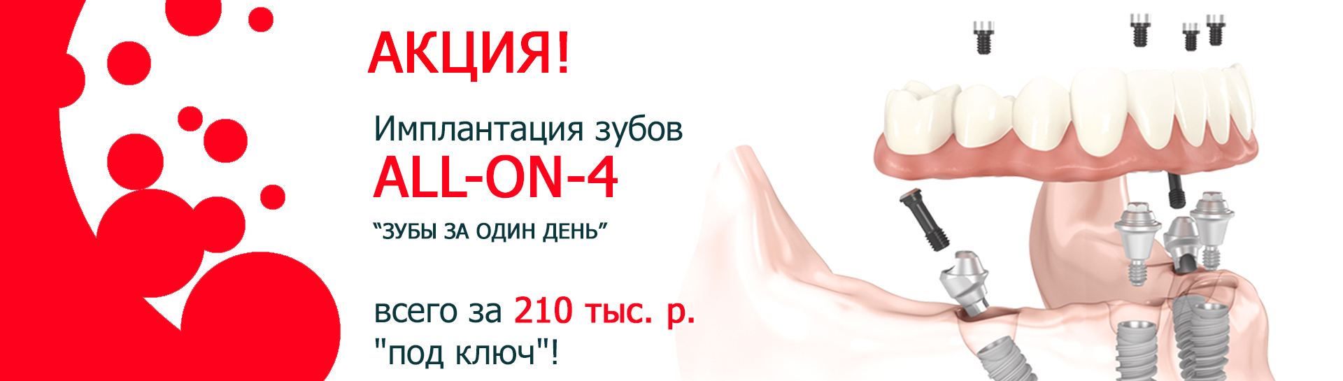 https://denta-maryino.ru/wp-content/uploads/All-on-4_slider.jpg 1x, https://denta-maryino.ru/wp-content/cache/thumb/07/6f7b1b131d1d507_1320x545.jpg 1320w