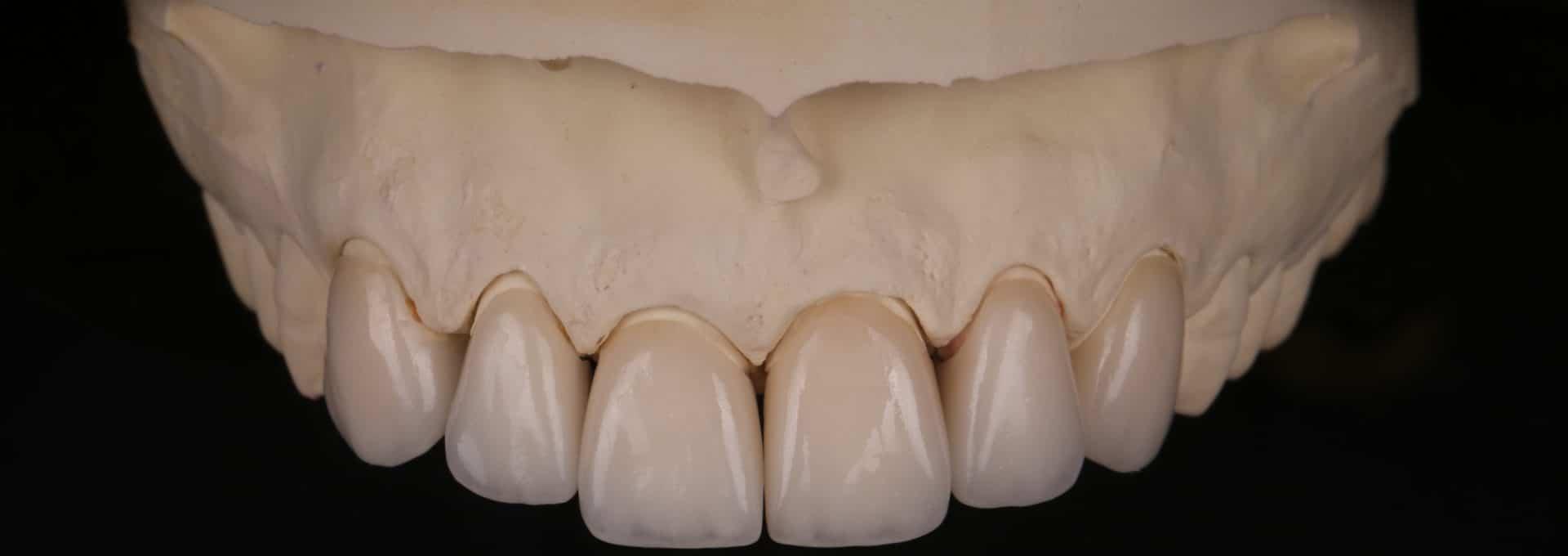 Тотальная реставрация зубов
