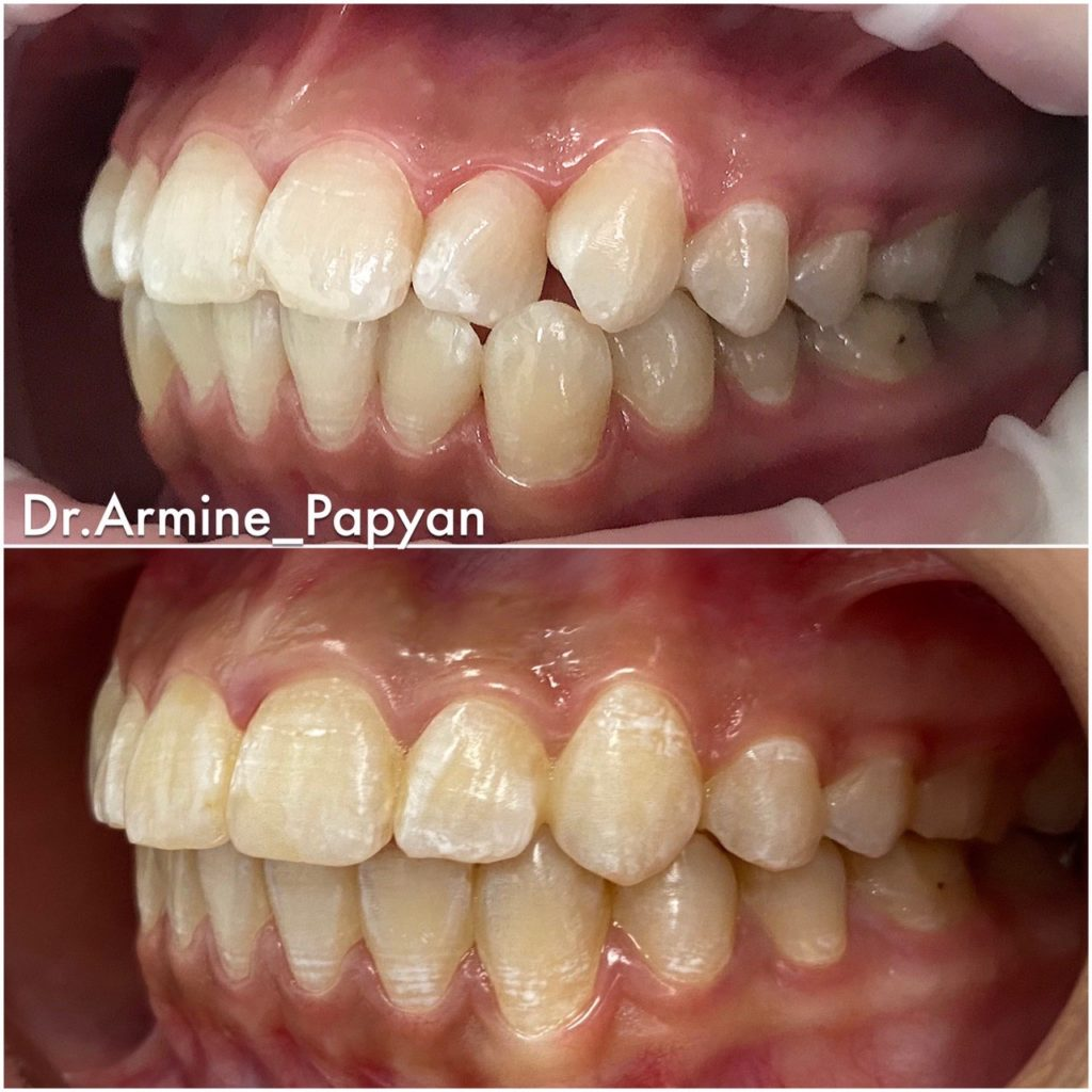 Ортодонтическое лечение в Дента