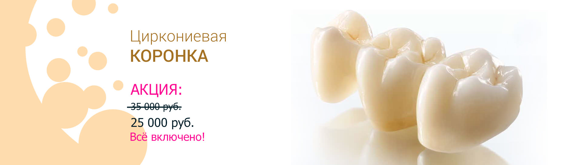 https://denta-maryino.ru/wp-content/uploads/Koronka.jpg 1x, https://denta-maryino.ru/wp-content/cache/thumb/19/27bdf8e06cdad19_1320x545.jpg 1320w