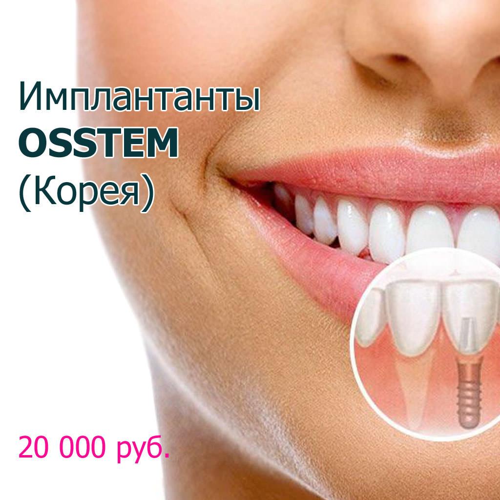 Osstem_implants_denta