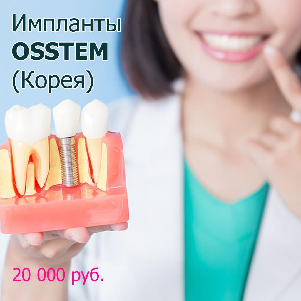 Зубные импланты Osstem акции в Москве