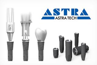 Импланты Astra tech