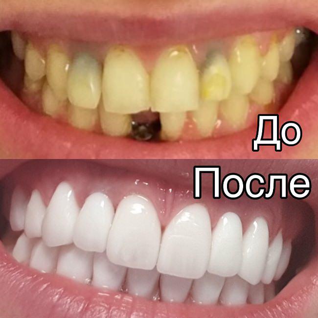 До и после восстановления зубов