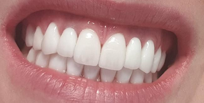 После восстановления зубов