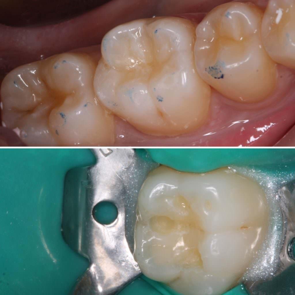 Реставрация зубов в стоматологии Дента Марьино
